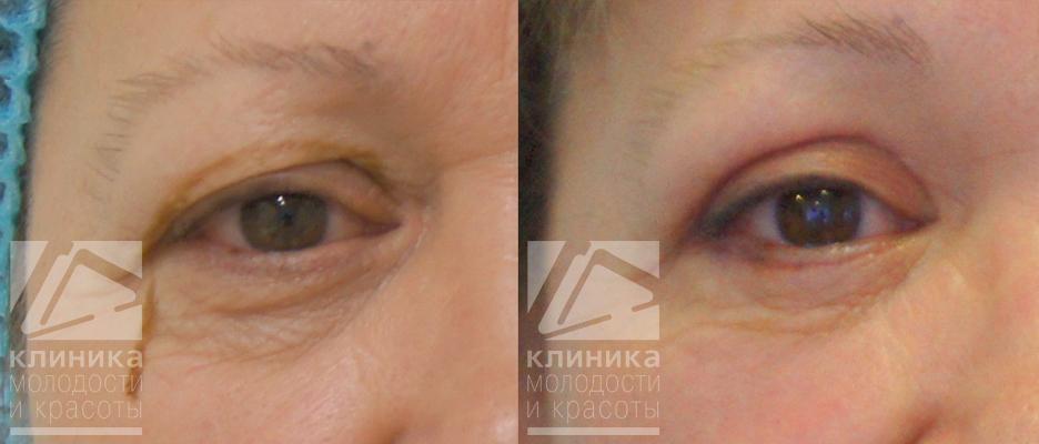 Отек лица после блефаропластики